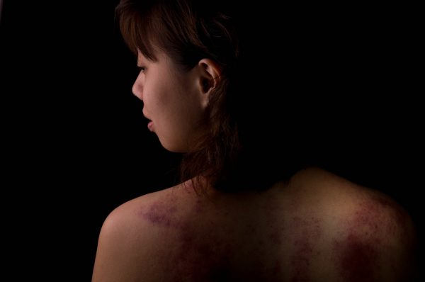 Artistic depiction of a domestic violence victim. Coinciding with decreased public visibility due to lockdowns and stay-at-home orders, violence against household members in 2020 increased significantly.